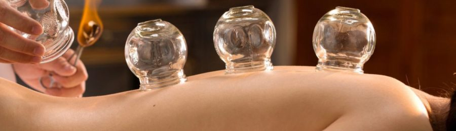 cupping-e1474487984248